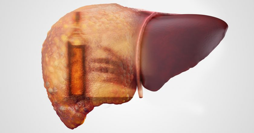 Liver and alcohol addiction double exposure |