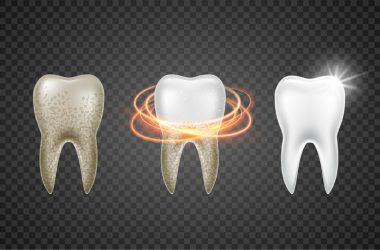 Tooth clean 3d health. Dental realistic dirty whitening. Dentist teeth hygiene medicine template | © Vasilyrosca | Dreamstime Stock Photos