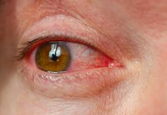 Closeup irritated infected red bloodshot eyes, conjunctivitis | © Andrei Afanasiev | Dreamstime Stock Photos