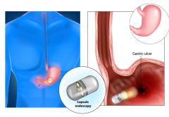 Capsule endoscopy aka pill cam | © Viktoriia Kasyanyuk | Dreamstime Stock Photos