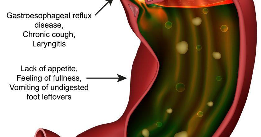 Gastroparesis stomach medical  illustration on white background