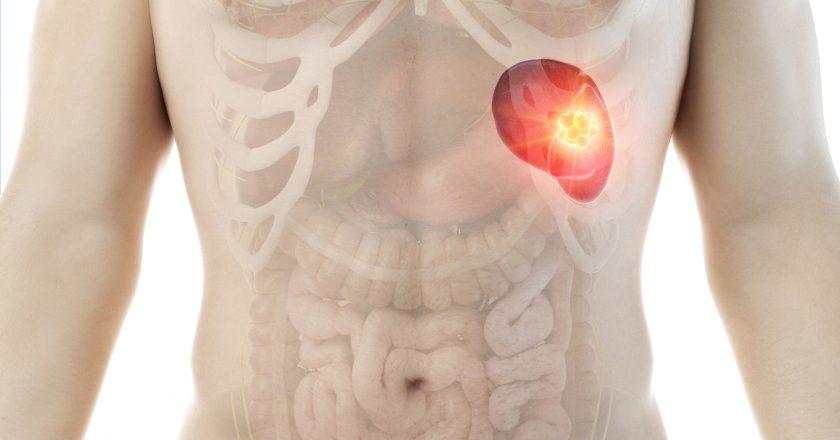 A mans spleen tumor