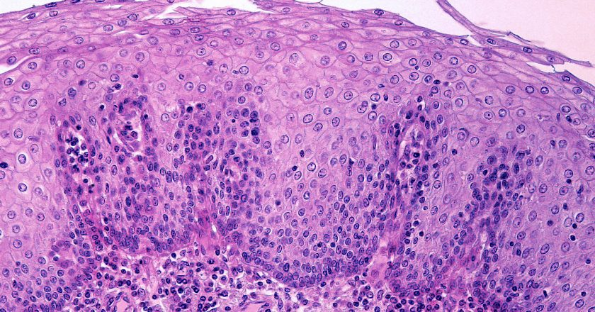 Epithelium of esophagus |