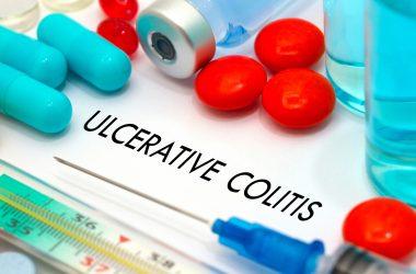 Ulcerative colitis |
