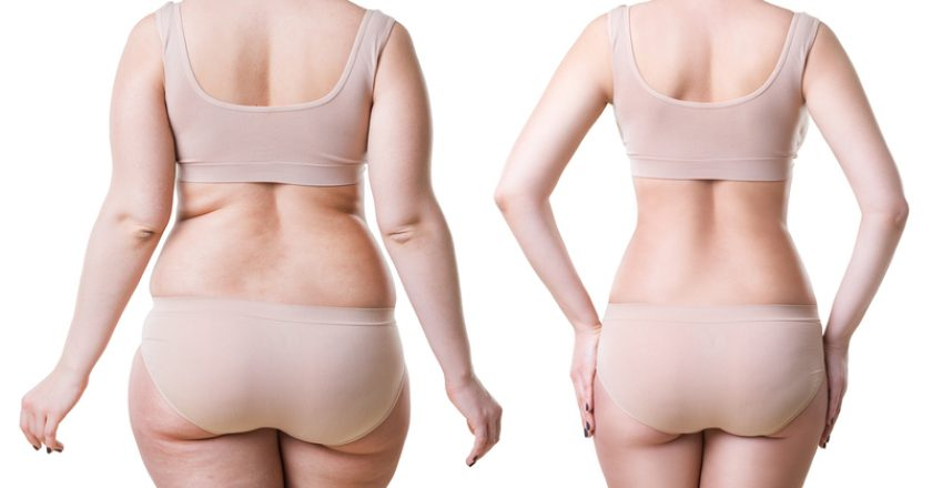 Woman`s body before and after weight loss isolated on white background | © Starast | Dreamstime Stock Photos