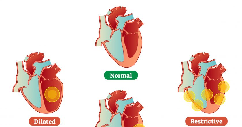 Cardiomyopathy medical disorders cross section diagram, vector illustration examples.