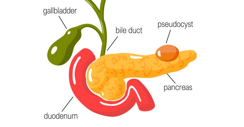 Pancreatic pseudocyst concept. Vector illustration
