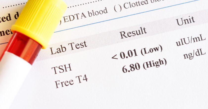 Hyperthyroidism test result