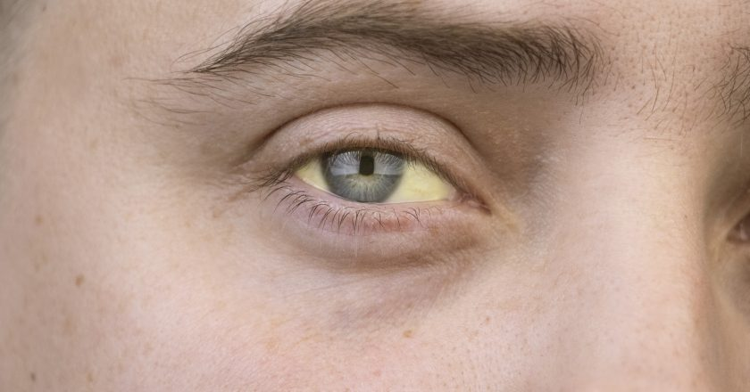 The yellow color of the male eye. Symptom of jaundice, hepatitis or problems with the gall bladder, gastrointestinal tract, liver