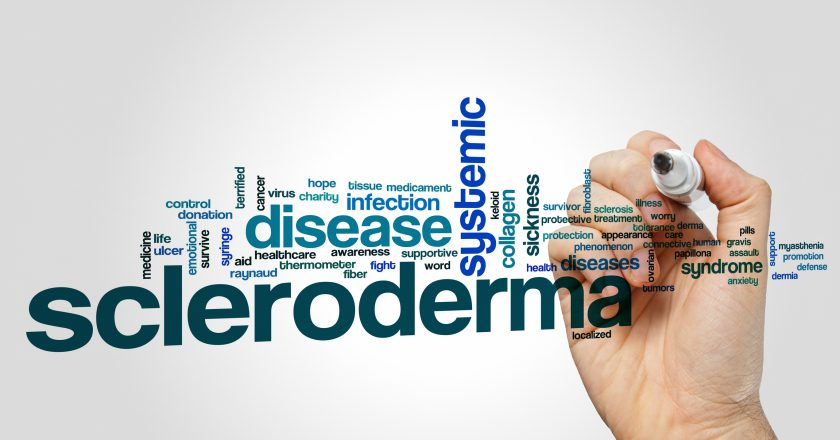 Scleroderma word cloud