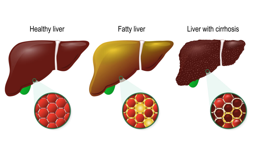 Healthy, fatty and cirrhosis of the liver