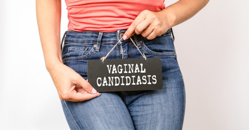 Vaginal candidiasis, Health, hygiene and the immune system concept | © Tumsasedgars | Dreamstime Stock Photos