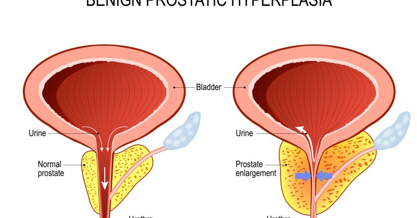 Benign prostatic hyperplasia BPH. prostate enlargement | Υπερπλασία προστάτη