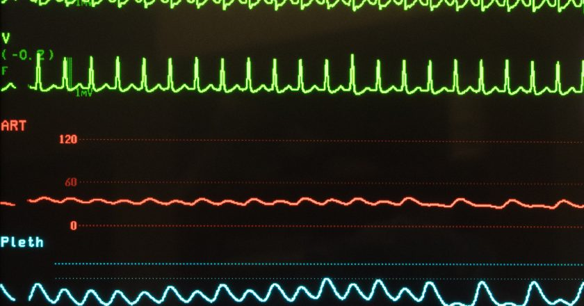 Supraventricular Tachycardia, Arterial Blood Pressure and Oxygen Saturation on Monitor | Ταχυκαρδία