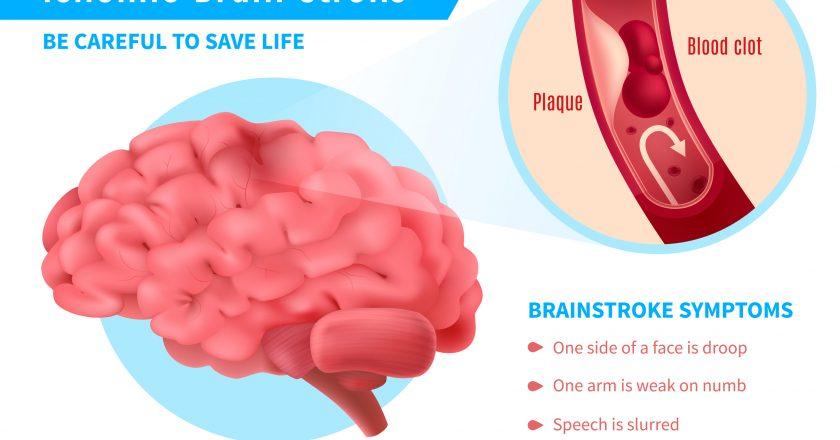 Ischemic Brain Stroke Poster | Παροδικό ισχαιμικό εγκεφαλικό