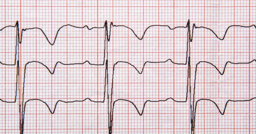 Fragment of a normal children`s electrocardiogram with arrhythmia elements.