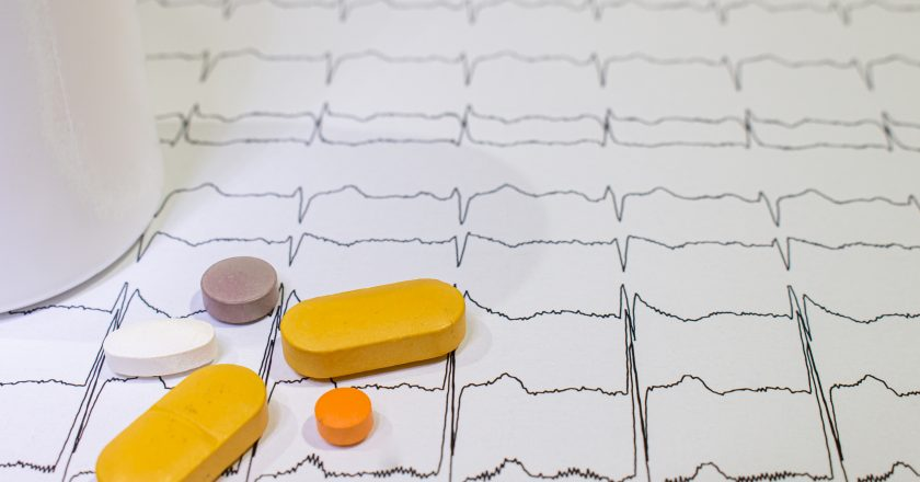 Electrocardiogram with Brugada syndrome. Colored pills on an EKG path. Sudden cardiac death due to arrhythmias