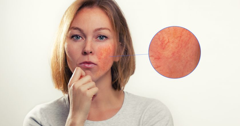 Medicine, cosmetology, rosacea. A blonde woman with rosacea-inflamed cheeks and blood vessels. Enlarged image of the focus of
