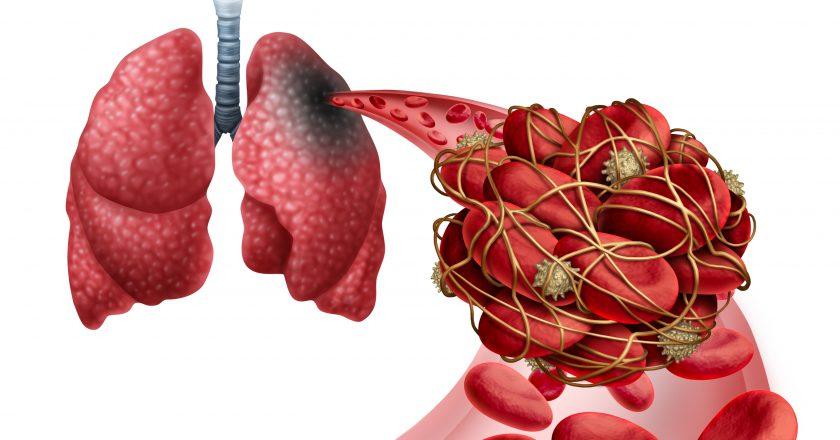 Pulmonary Embolism | πνευμονική εμβολή