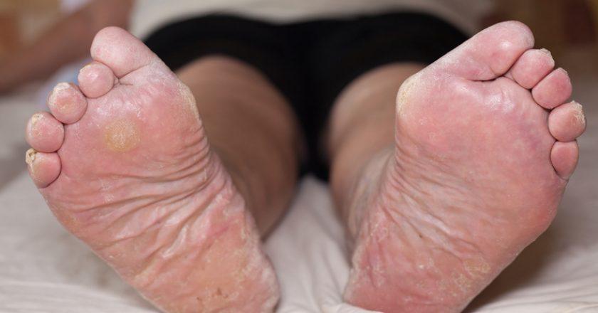 Senior leg problems | © Janmika | Dreamstime Stock Photos