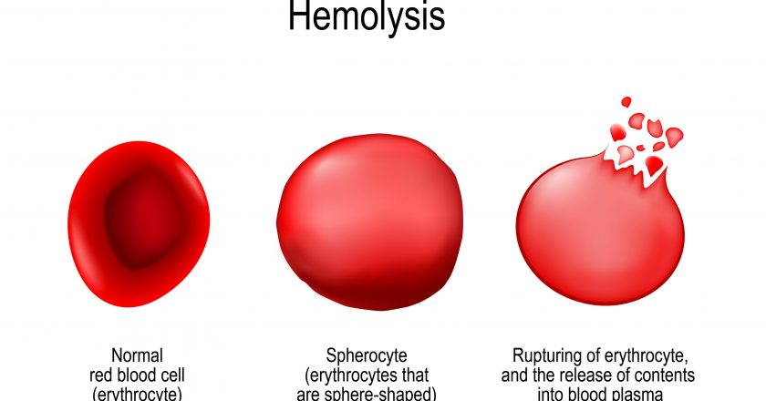 Hemolysis. Normal red blood cell, spherocyte, and rupturing of e