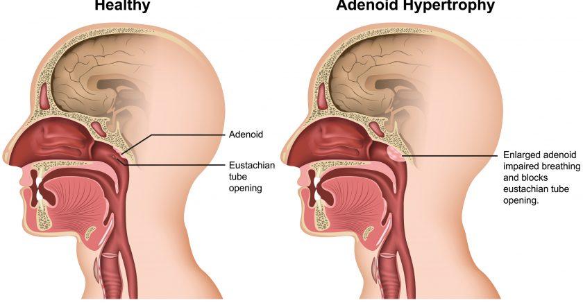Adenoid hypertrophy medical  illustration on white background