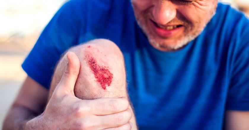 Emergency accident open abrasion wound trauma skin leg knee