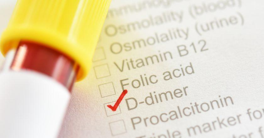 Blood sample for D-dimer test