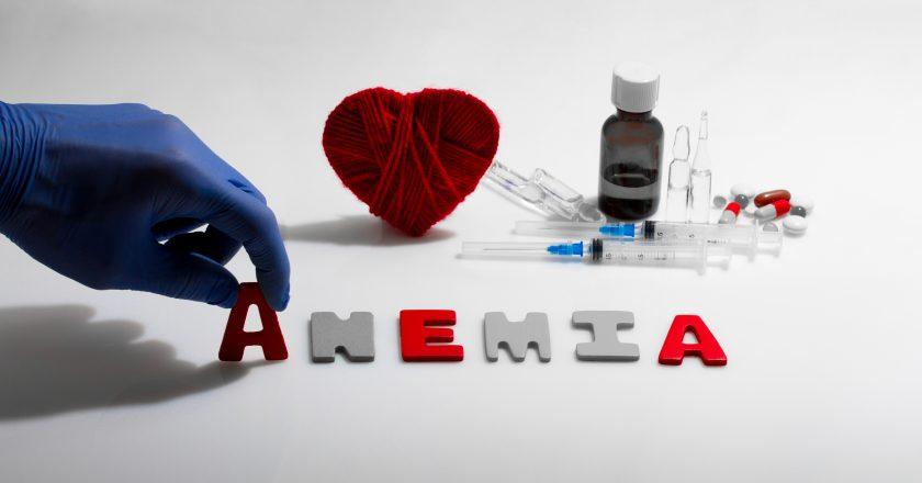 Anemia |