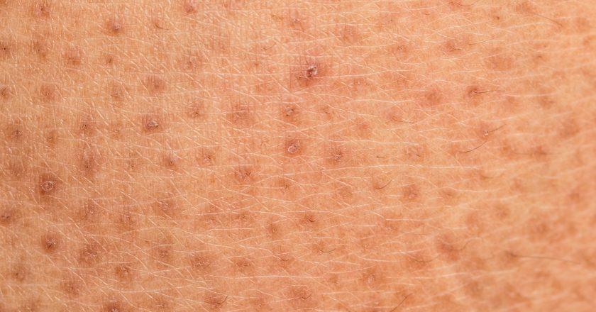 Skin problem,Dry skin ichthyosis vulgaris