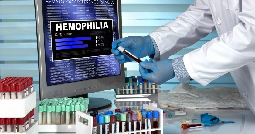 Doctor in lab examining blood sample with the text hemophilia in