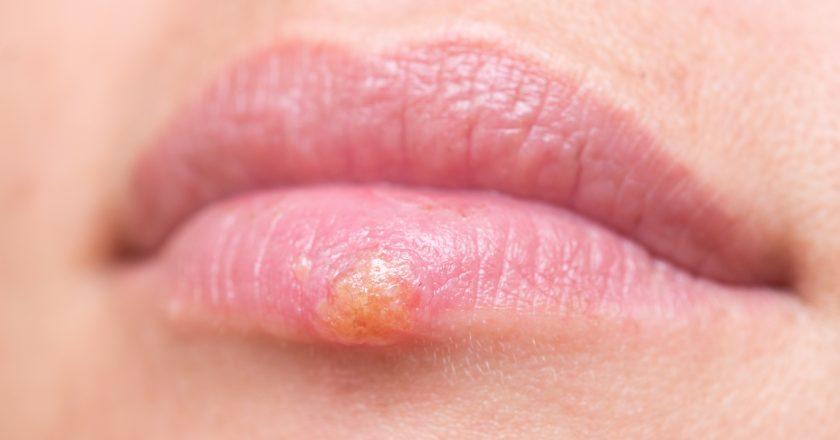 Herpes on lips | Επιχείλιος έρπητας