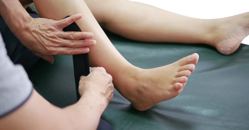 Physical therapists use the method of kinesiology taping in the patient`s leg muscles to decrease pain and improve mobility. |