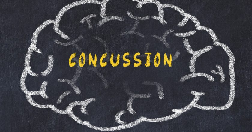 Chalk drawing of human brain with inscription concussion | Διάσειση