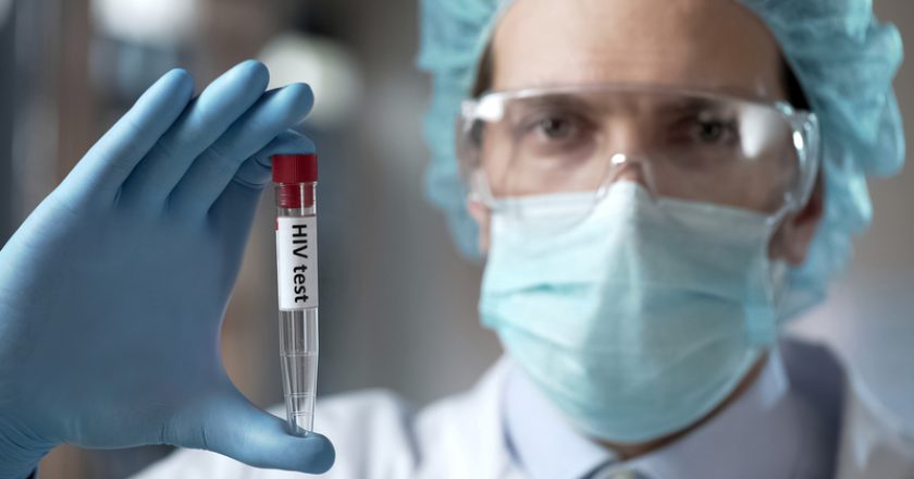 Laboratory expert holding blood test for HIV antibodies, infection prevention |