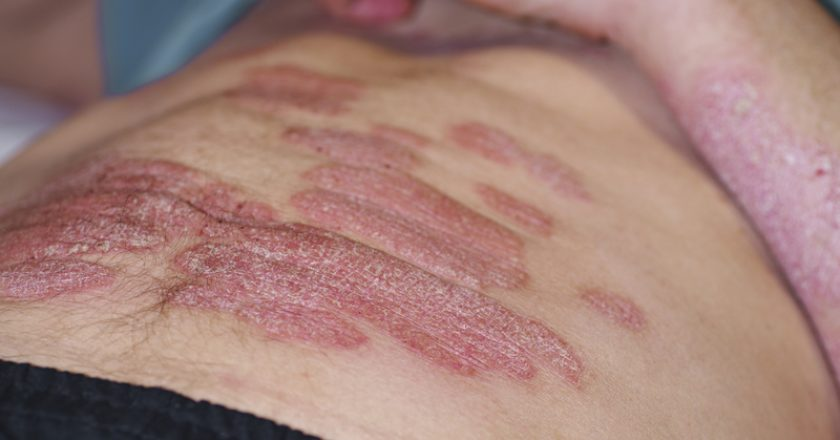 The body of a man is covered with extensive psoriasis. A man lies on his back and on his psoriasis. |