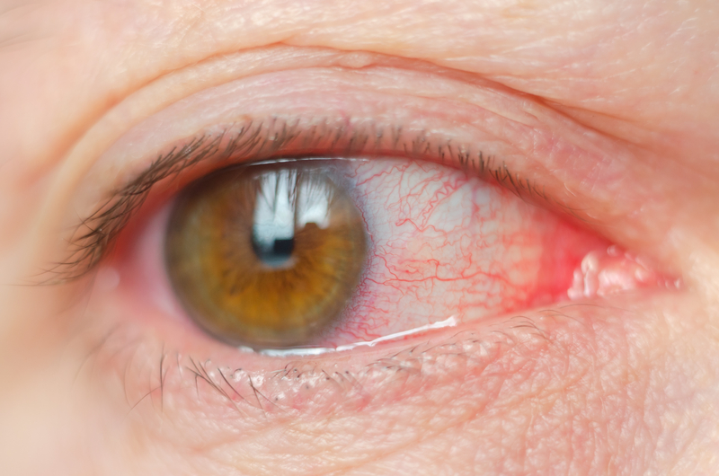 Closeup irritated infected red bloodshot eyes, conjunctivitis |