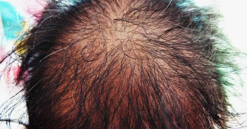 Asian female head with hair loss problem |