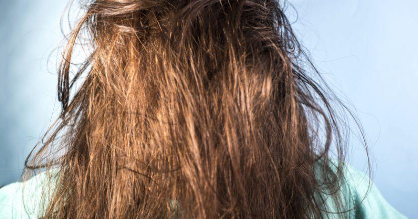 Oily hair problems in women. Dirty hair. Problem skin hear