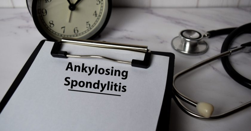 Ankylosing Spondylitis write on a paperwork isolated on office desk. Healthcare/medical concept |