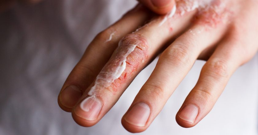 Cropped image of a young man putting moisturizer onto his hand with very dry skin and deep cracks with cream emmolient. |
