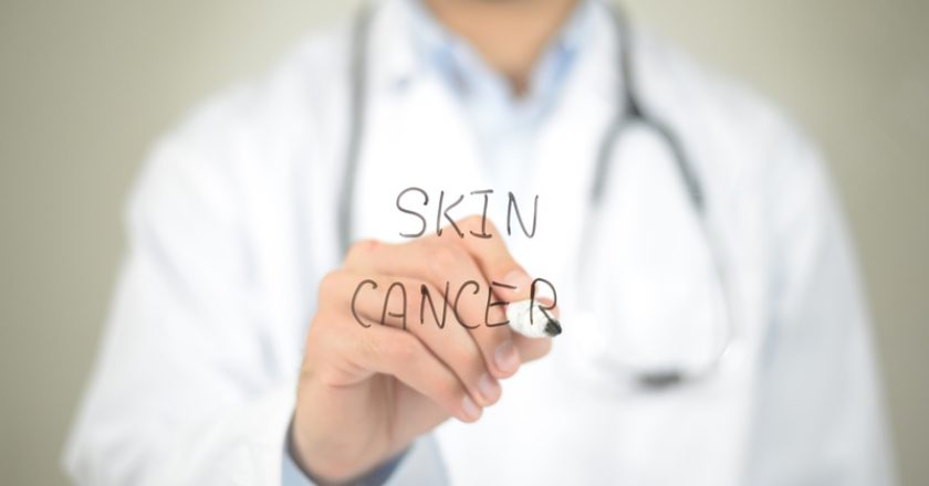 Skin Cancer , Doctor writing on transparent screen |