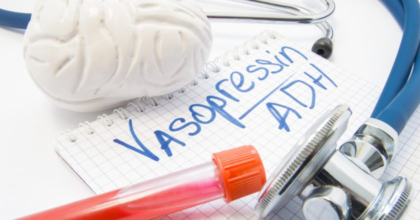 Lab test tube with blood stethoscope brain lie near note labeled hormone Vasopressin or antidiuretic hormone ADH. Diagnosis vasopr