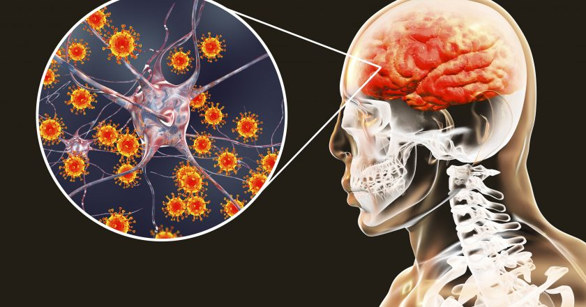 Viral meningitis and encephalitis, medical concept