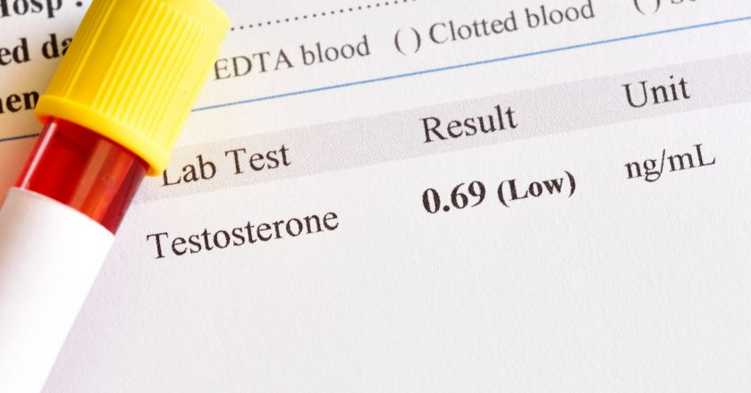 Abnormal low testosterone hormone test result