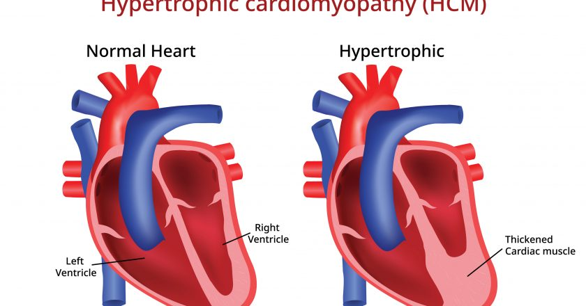 Hypertrophic cardiomyopathy, Heart disease, Vector image