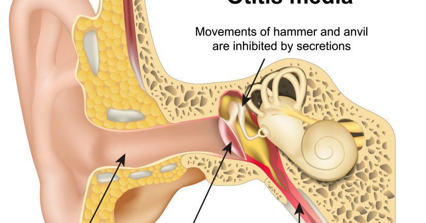 Otitis media ear disease 3d medical vector illustration on white background