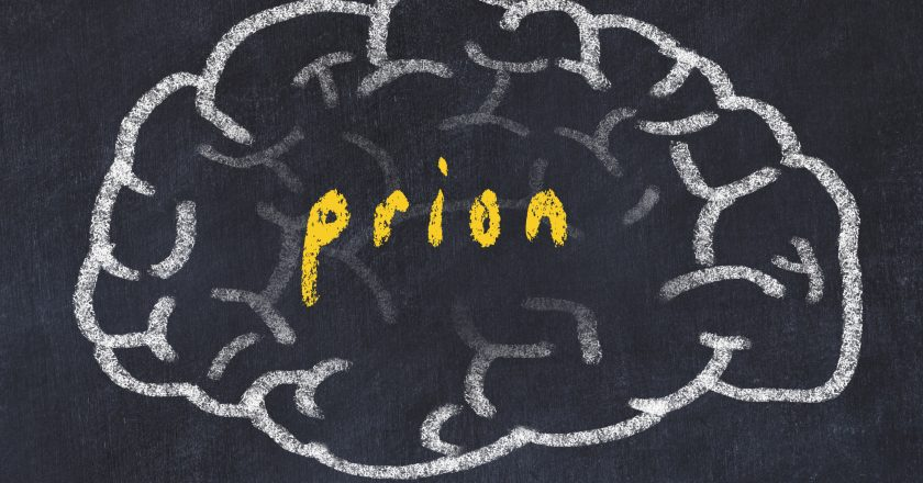 Drawind of human brain on chalkboard with inscription prion