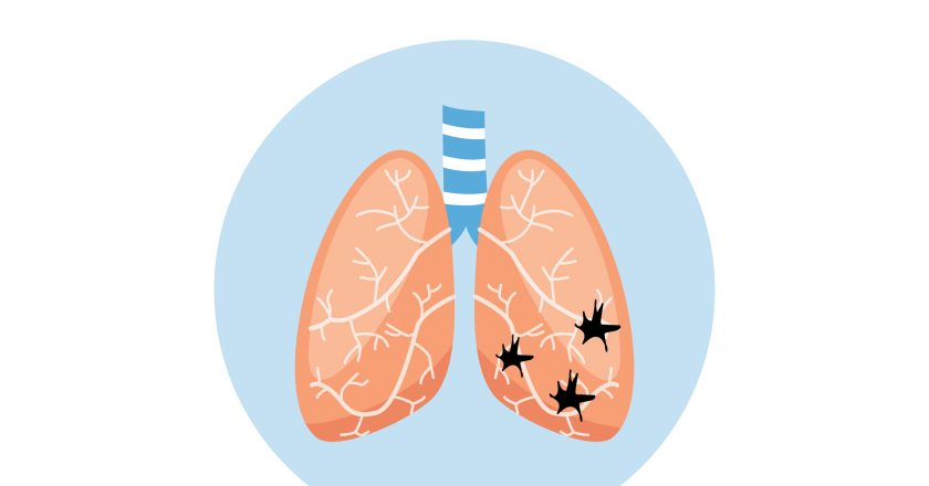 Atelectasis a medical scheme of lung disease vector illustration isolated.