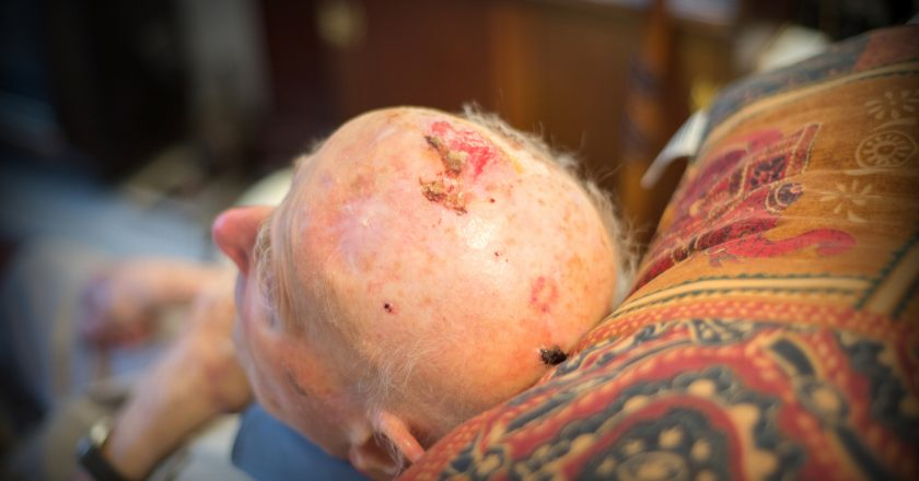 Elderly man being treated at home by a district nurse,Hampshire,United Kingdom